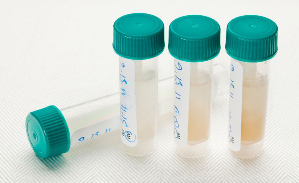 Saliva_Hormone_Testing